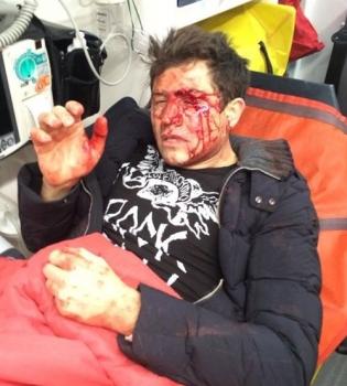 Андрей Джеджула,нападение,избили,фото,больница,травмы,девушка