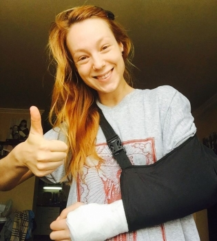 Светлана Тарабарова, Тарабарова, Тарабарова сломала руку, Тарабарова упала, Тарабарова велосипед, Тарабарова травма, Светлана Тарабарова фото