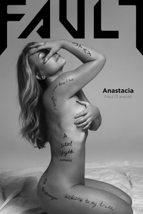 Победившая рак Анастейша снялась в откровенной фотосессии и показала шрам после операции