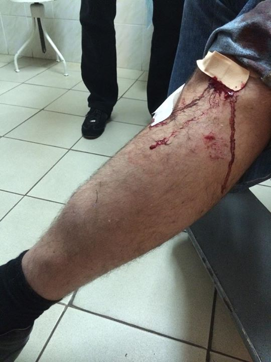 Андрея Джеджулу жестоко избили в Киеве: фото и комментарии пострадавшего