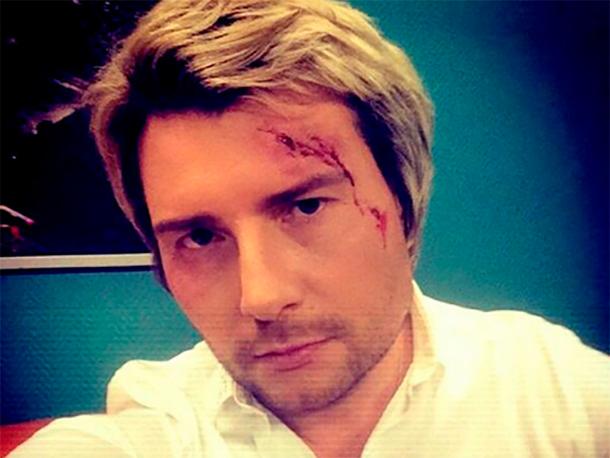 Николай Басков получил серьезную травму головы