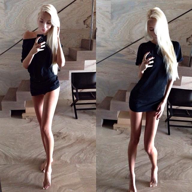 Алена Шишкова больна анорексией