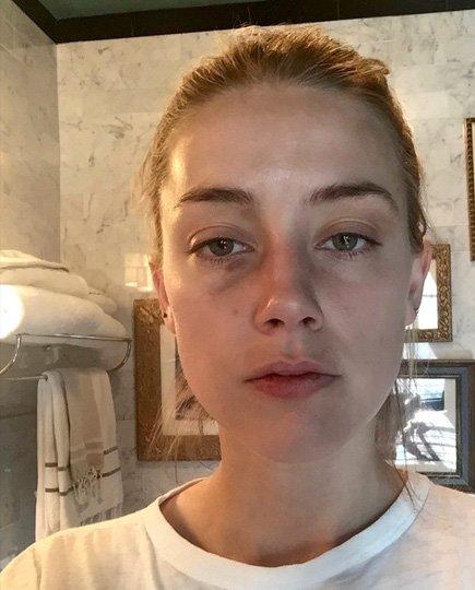 Эмбер Херд обнародовала снимки, сделанные после того, как ее избил Джонни Депп