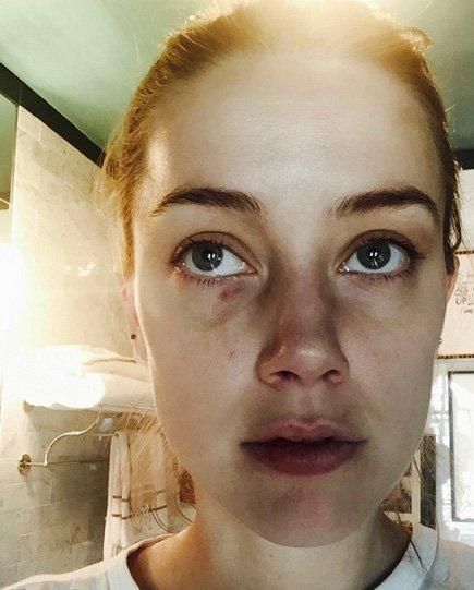 """Подруга Эмбер Херд выступила в защиту актрисы: """"Я видела ее синяки"""""""