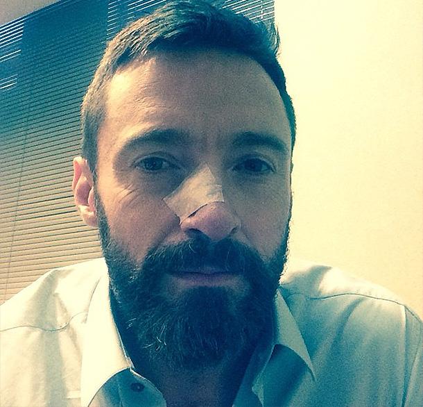 Хью Джекман проходит третий курс лечения рака кожи