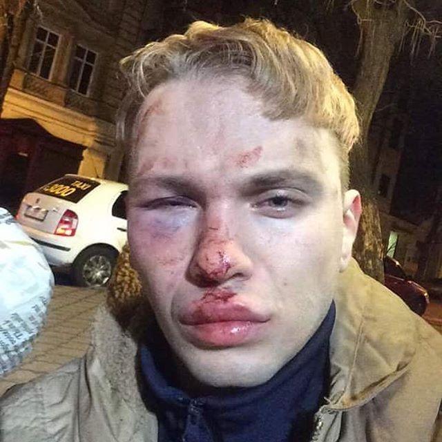 "Участника ""Голос країни"" и подопечного Ивана Дорна жестоко избили в Одессе"