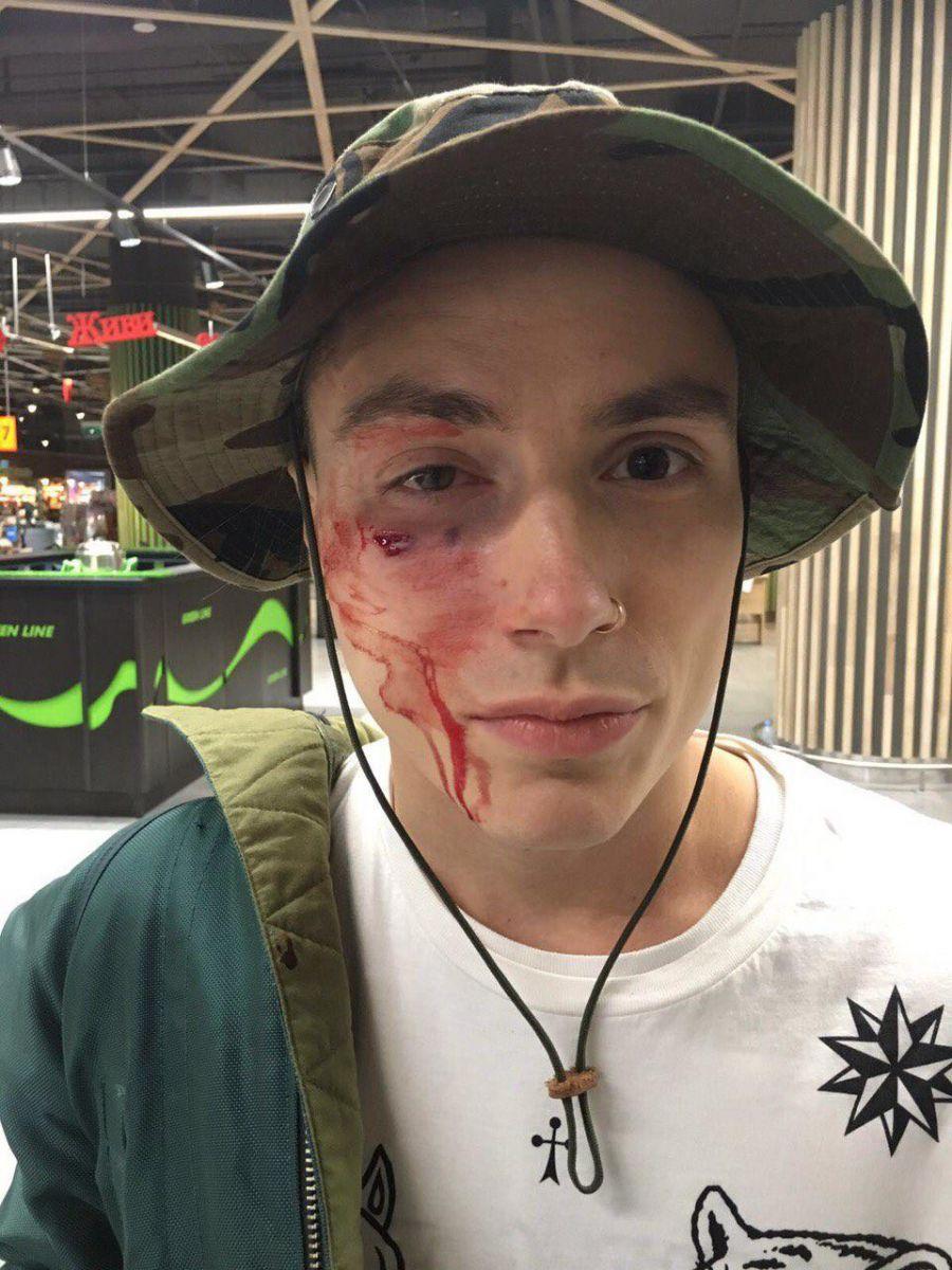 В Киеве жестоко избили участника группы Quest Pistols Show
